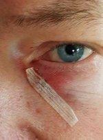 Två stygn fem mm från ögat (5) - kopia.jpg